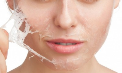woman getting chemical peel
