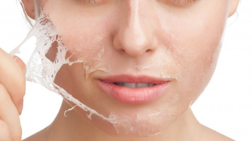 Choosing the Right Chemical Peel for Your Skin