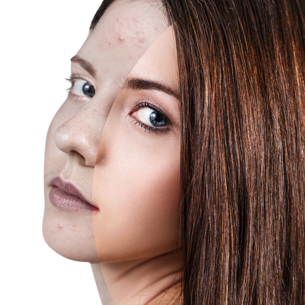 Causes and Treatment of Hormonal Acne